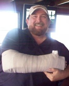 Me in my temporary splint the day after the accident