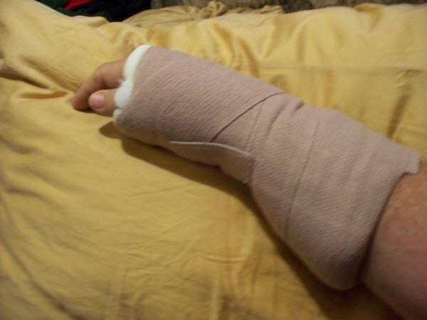 My arm-new splint ©2012